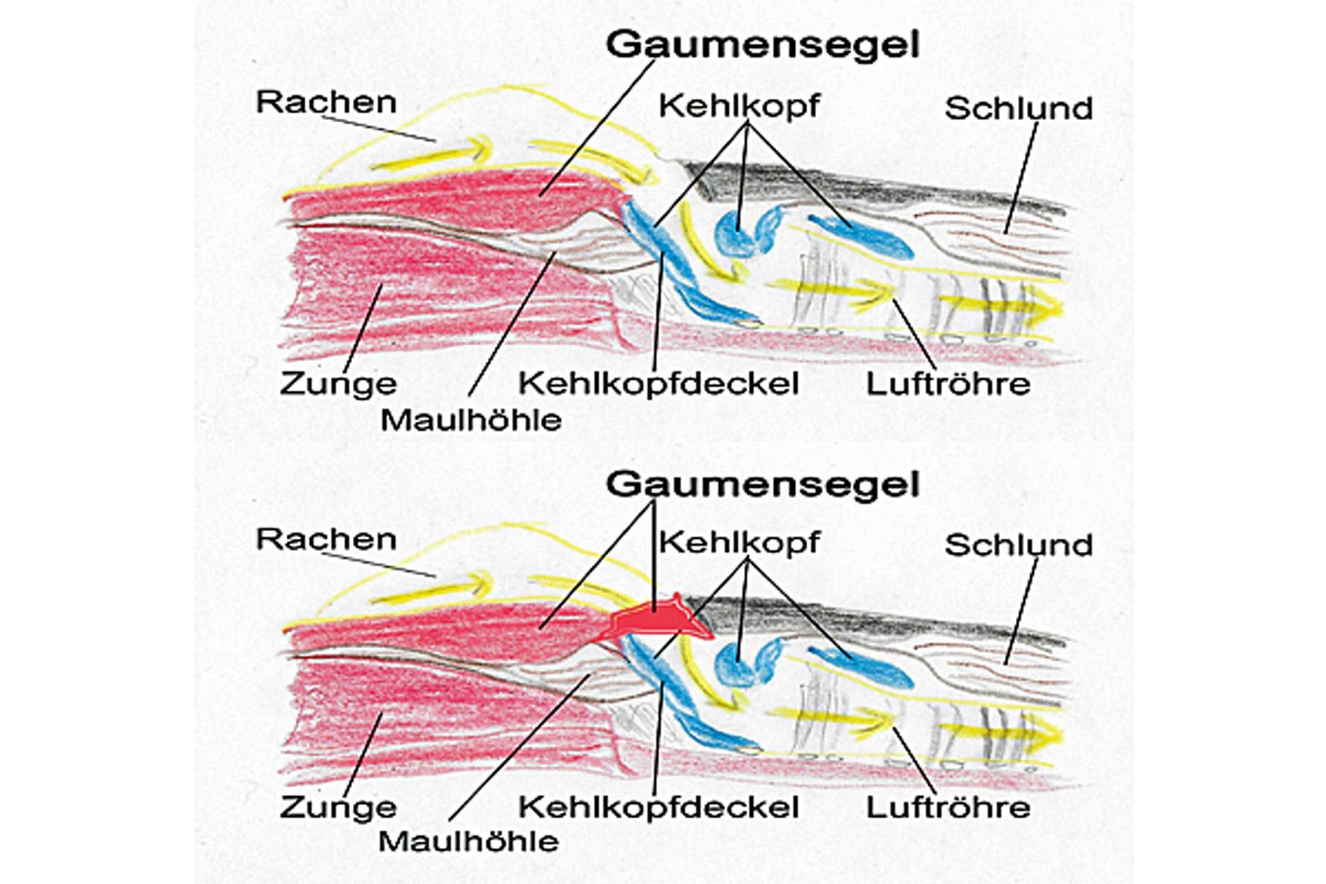 Brachycephalensyndrom Vergleich von normalen anatomischen und den pathologischen Verhältnis im Querschnitt